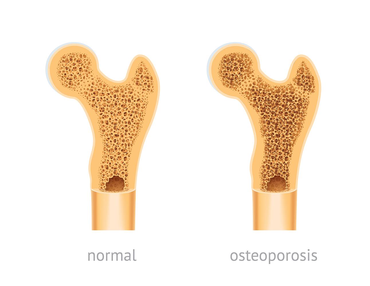 fractura osteoporosis menopausia