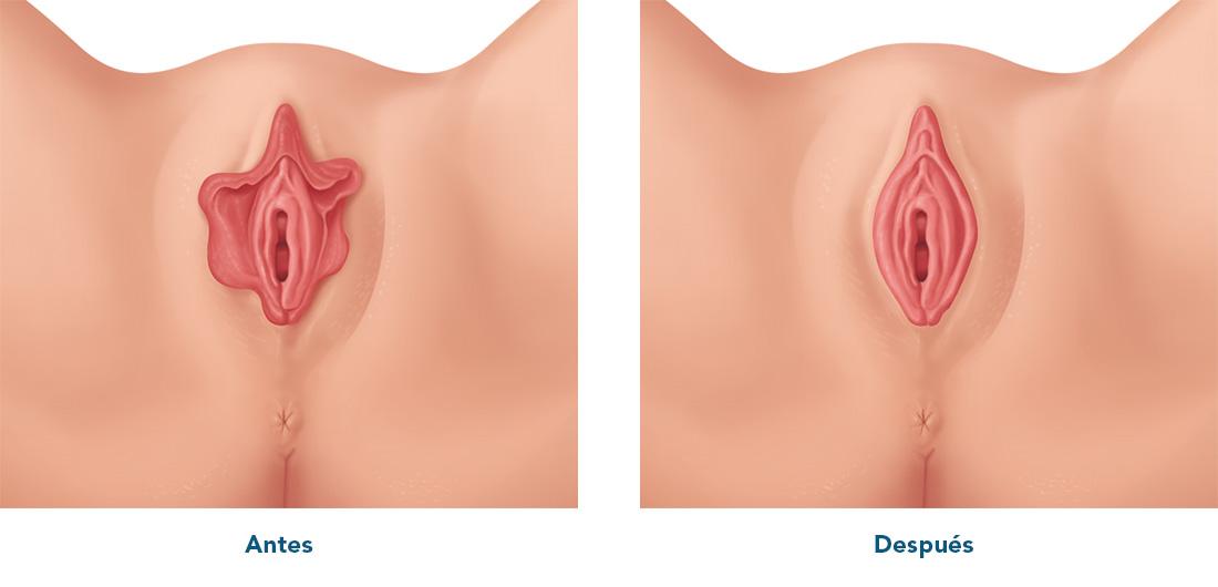 Antes y después de una Labioplastia Láser