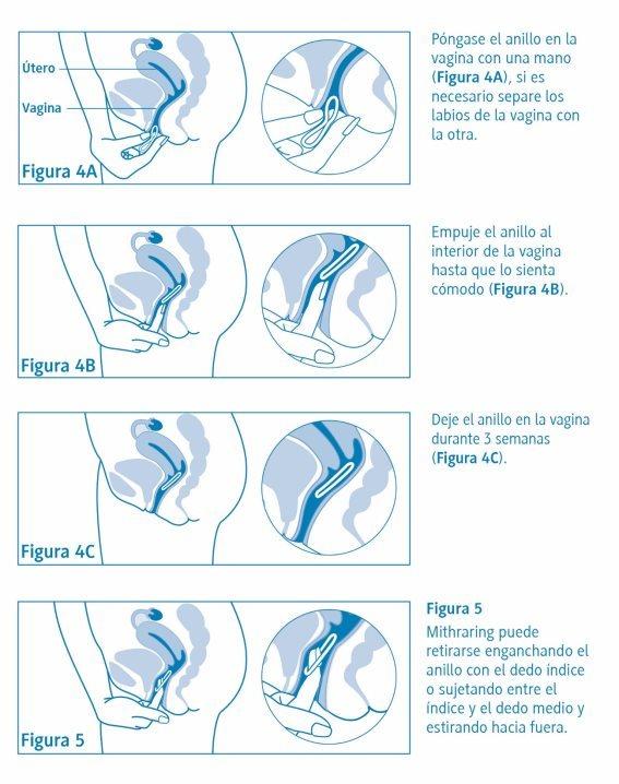 colocación anillo vaginal 1