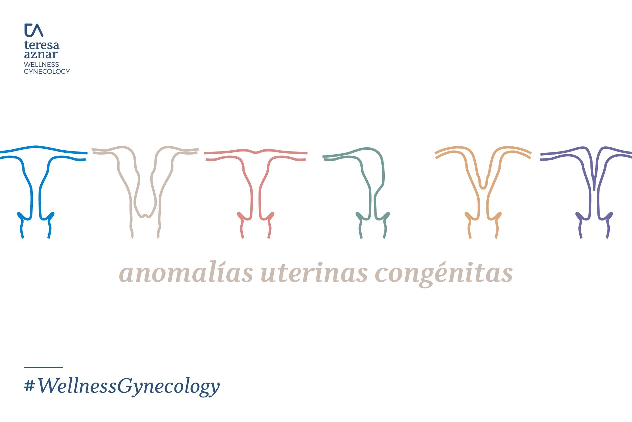 Anomalías uterinas congénitas
